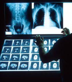 7fcda47071ee2ab8d070895e7312ddbc--radiology-healthy-life